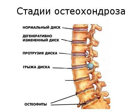 48_6_osteohandroz