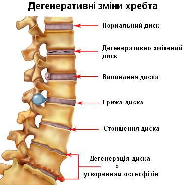 stadii_osteohondroza